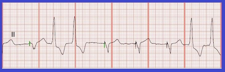Float Nurse: Practice EKG Rhythm Strips 183