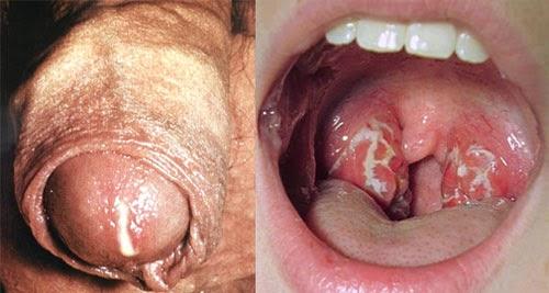 Penyakit Kencing Nanah Di Mulut