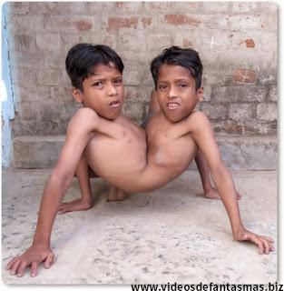 Hermanos Siameses pegados por la cadera son felices