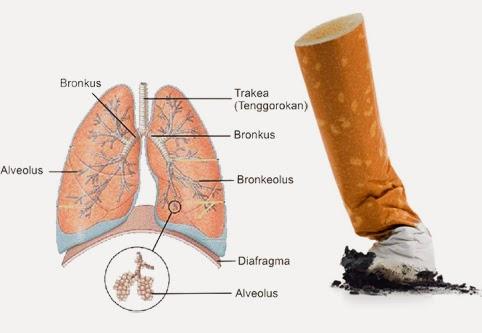 Cara membersihkan paru-paru dari asap rokok