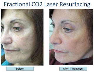 Combined Fractional Laser Skin Resurfacing - New Cosmetic Laser Treatment For Wrinkle Removal