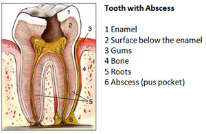 Tooth Amp Gums Incision And Drainage