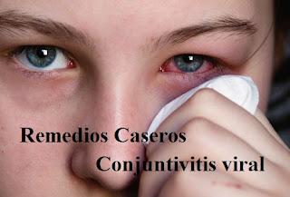 Remedios naturales para la conjuntivitis viral