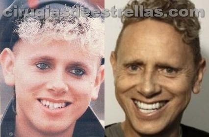 Antes y después de los dientes de Martin Gore