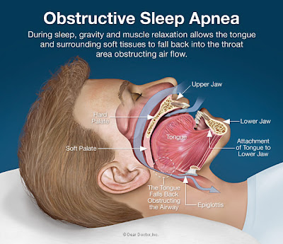 Novel device successfully treats central sleep apNea in heaRt failure