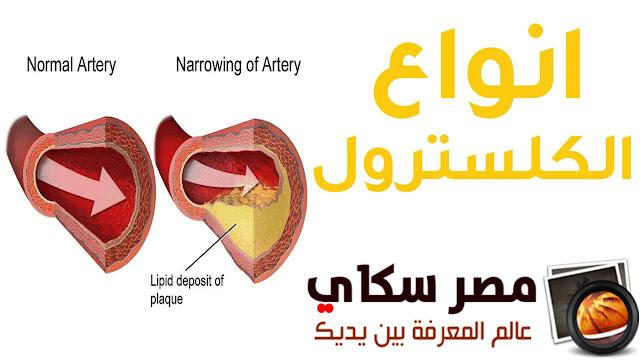 الكوليسترول وأنواعه وأهم أضراره