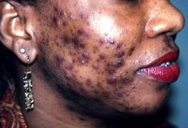 Solutions to Get Rid of Dark Spots on Face I Want Clear Skin Now