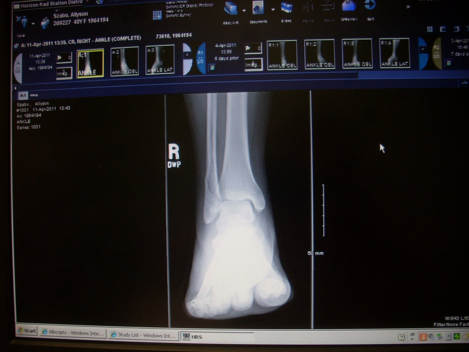 you can clearly see the spiral fracture in the fibula-3.bp.blogspot.com