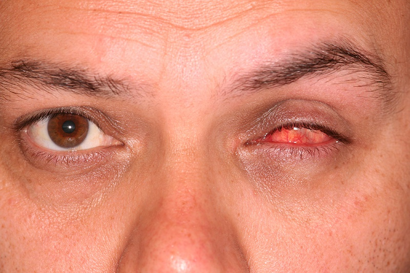 eye prothesis doc find The eyeprintpro™ is a prosthetic scleral cover shell which improves vision by creating a new, smooth, refractive surface for the eye unlike contact lenses, the eyeprintpro™ is not constrained to typical fabrication and therefore can match the exact contour of any eye- even in the most difficult conditions where other options have failed.