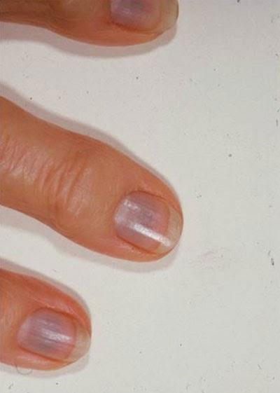 blue nail disease