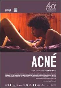 Acne &#8211; DVDRIP LATINO
