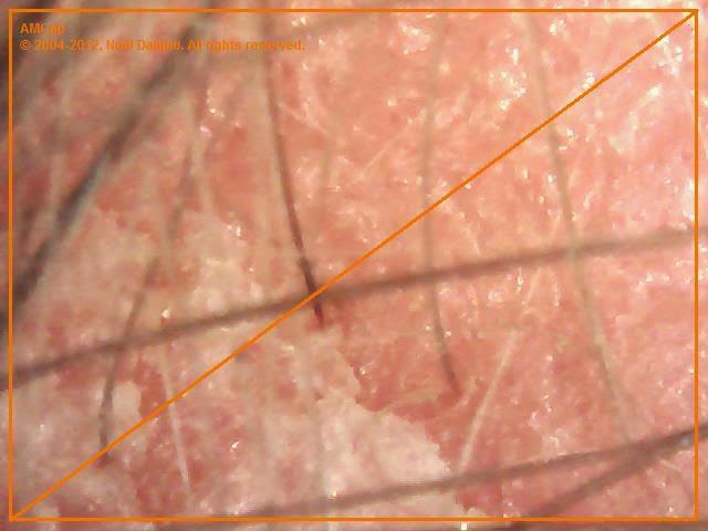 łuszczyca pod mikrokamerą