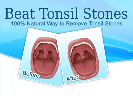 How to Remove Tonsil Stones - Tonsil Stones
