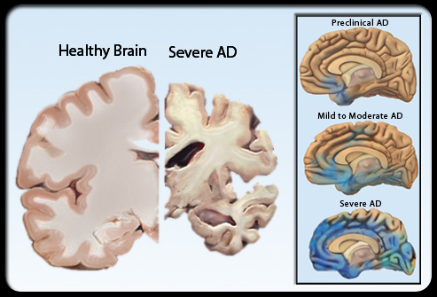 Brain as alzheimer s disease progresses alzheimer s disease continued