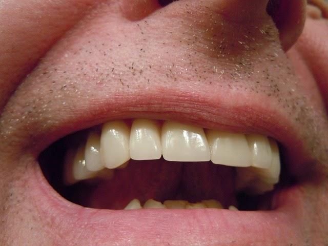 Cara Alami Memutihkan Gigi Kuning