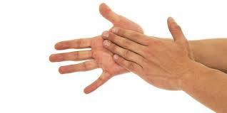 Suor em excesso nas axilas, mãos e pés tem tratamento