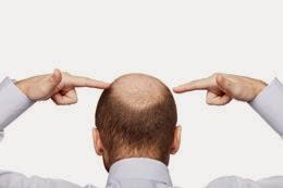 الخلل الهرموني وتساقط الشعر