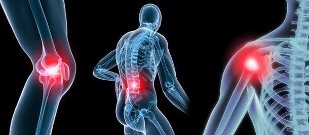 Osteoartrite: Causas, Sintomas e Tratamento