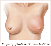 inflamatory breast cancer