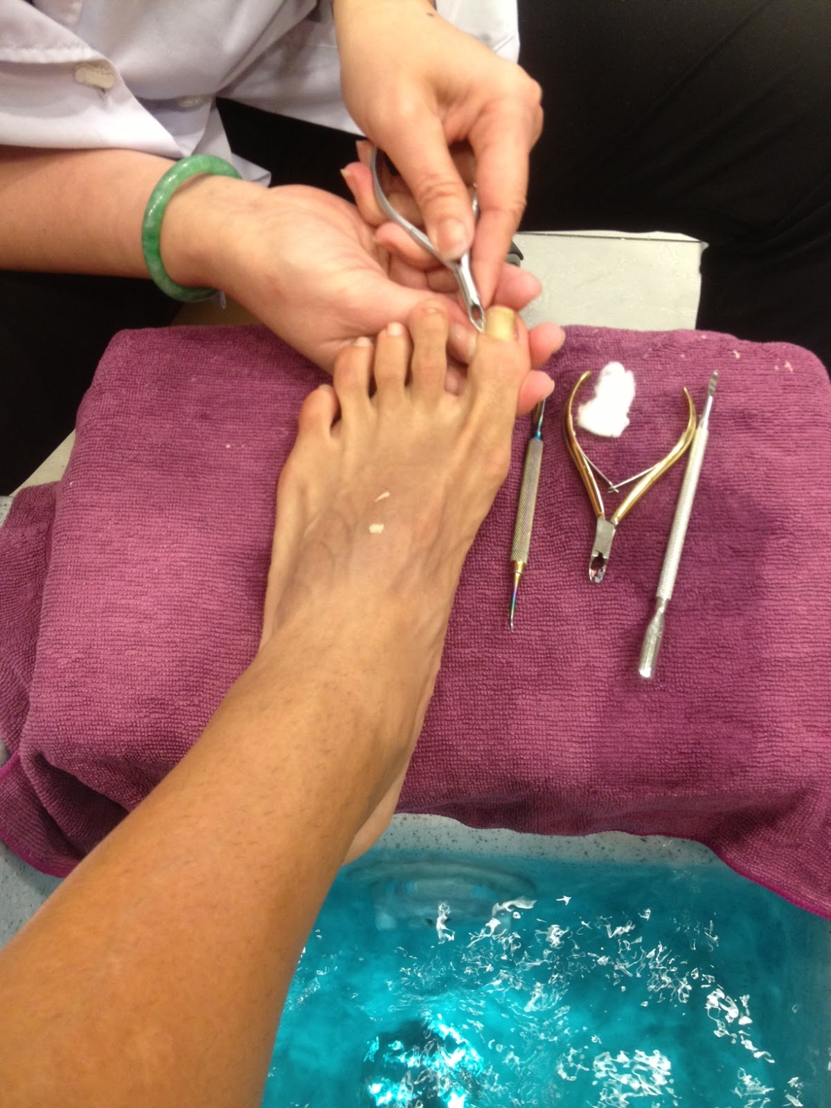 ... toe next to the big one is broken. The big toe has an ingrown toenail