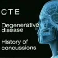 CTE opposite brain