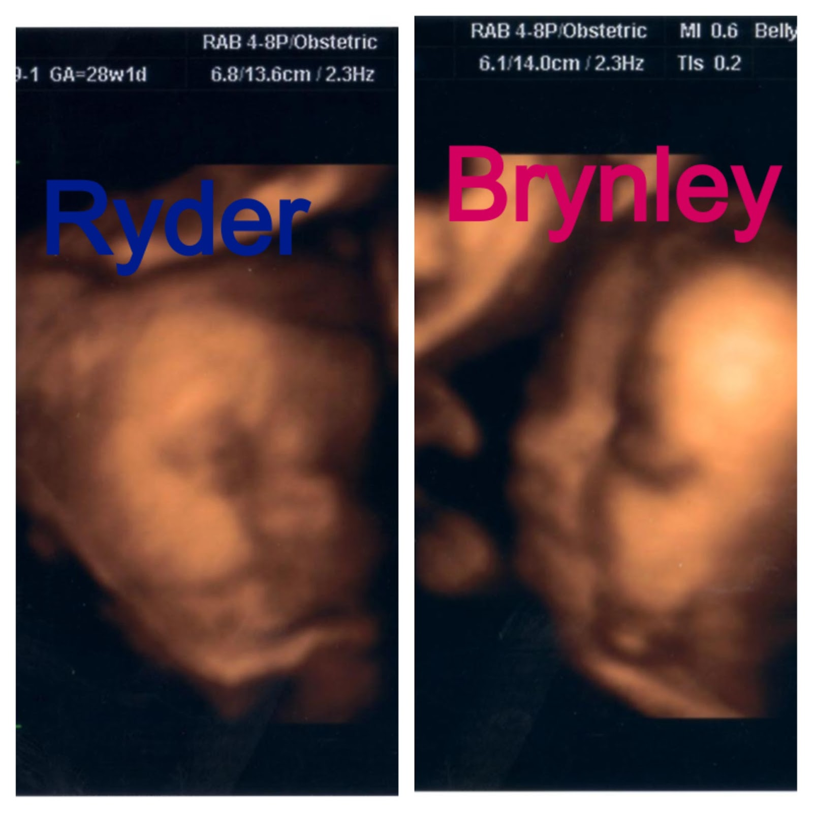 TTC Baby P my 3D 4D ultrasound my baby shower & my 1st