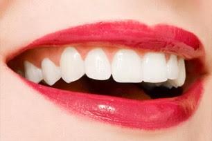 Cara Memutihkan Gigi Secara Alami Satria Partha Wijaya S Blog