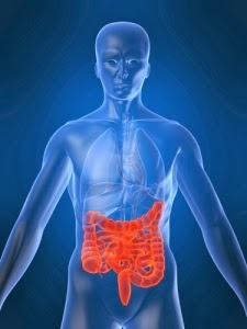 Tumores Intestinales