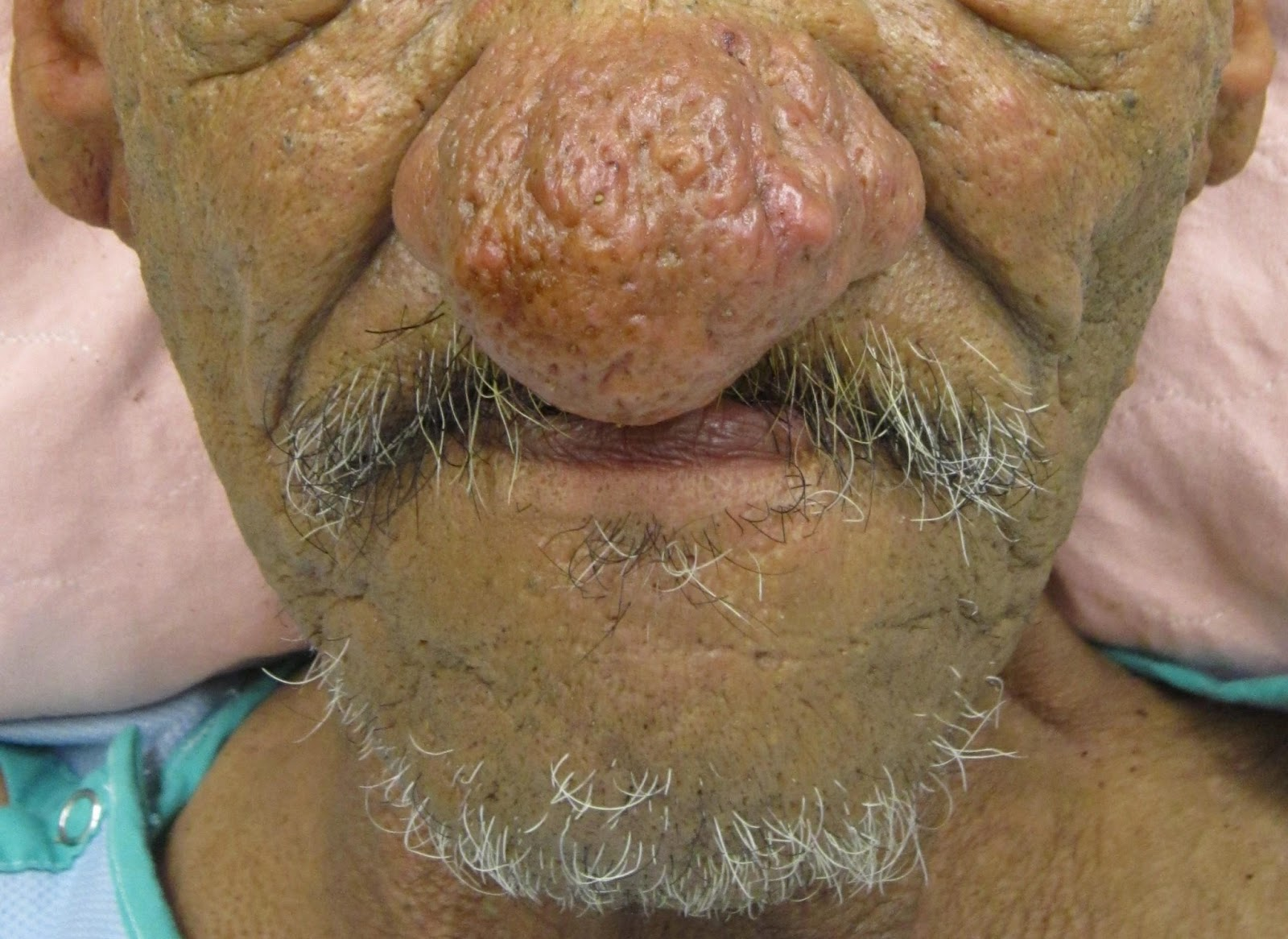 rhinophyma causes