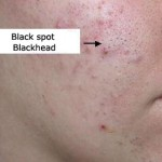 Blackheads which appear as brown or black spots on your skin