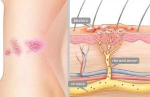 Ciri Penyakit herpes