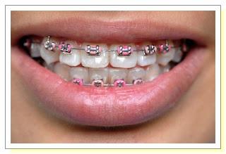 هل يعد تقويم الاسنان مفيدا؟