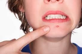 Pele com Tendência a acne – Como cuidar?