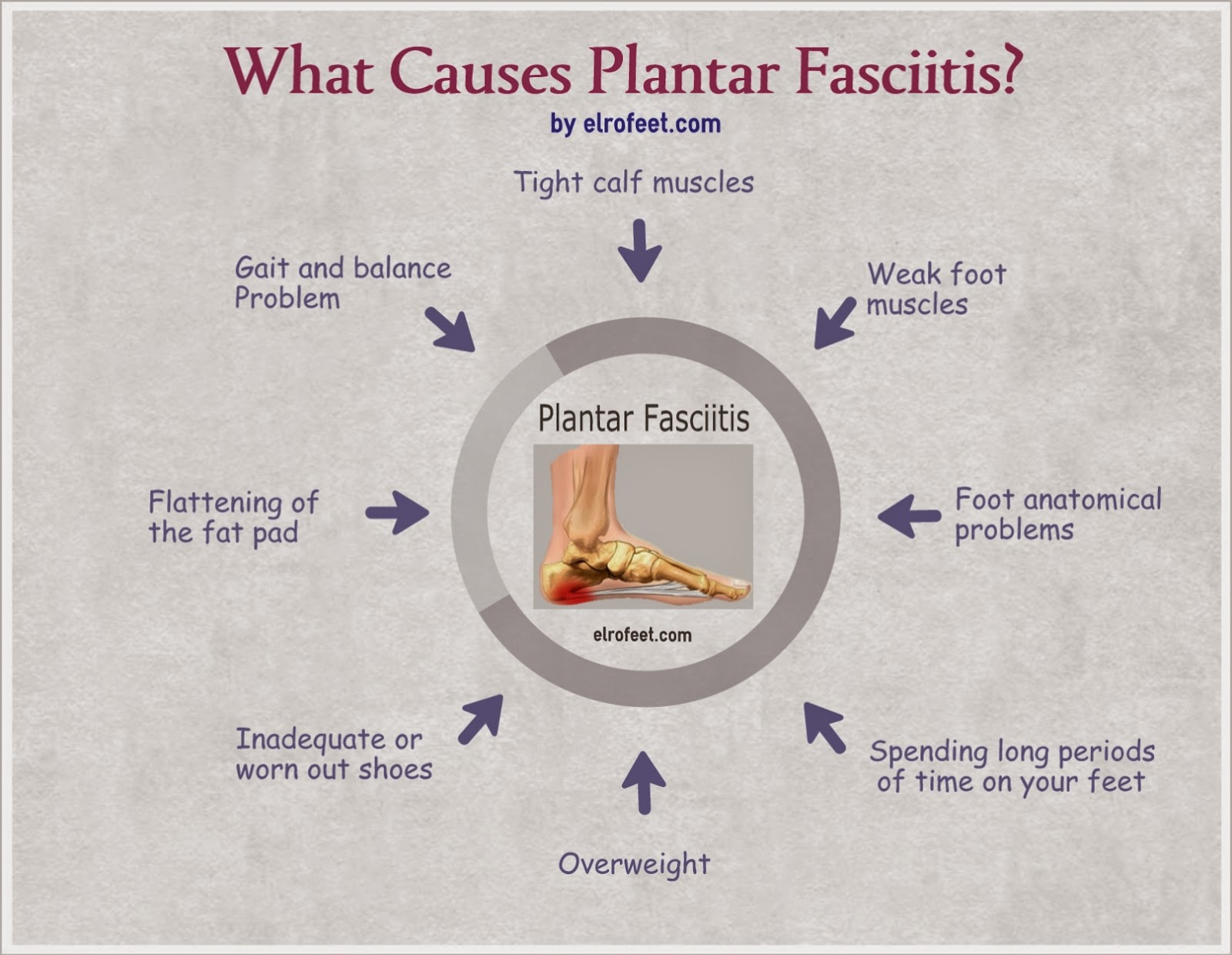 Living The Tri Life!: The Dreaded Plantar Fasciitis
