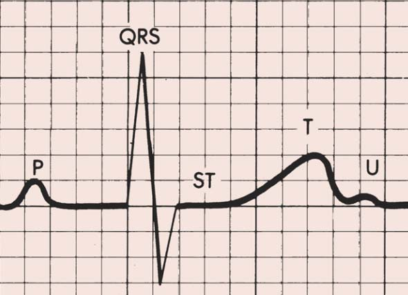 ECG T wave changes and interpretation ~ Medicine Hack