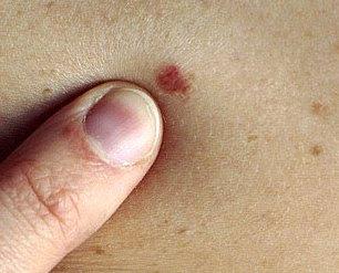 mild skin cancer