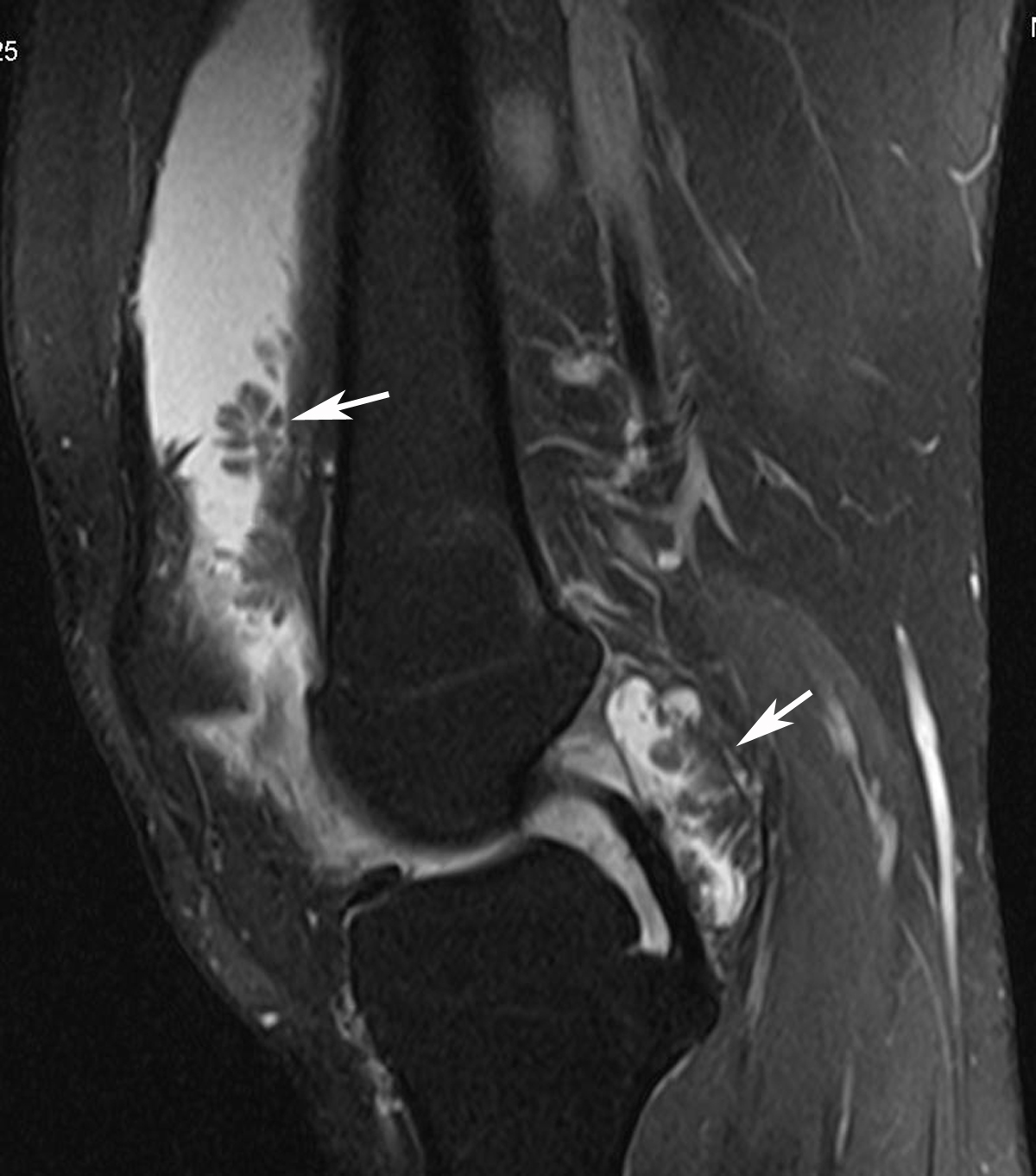 Radiodiagnosis - Imaging is Amazing-Interesting cases: Lipoma ...