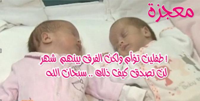 ولادة طفلين تؤام ولكن الفارق بينهم شهر ! شاهد كيف ذلك  سبحان الله