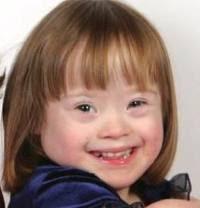 trisomy 21/down syndrome case study