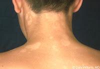 deride-mantar-neden-olur-nasıl-tedavi-edilir-hangi-krem-iyi
