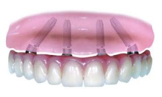 Dentist in Silver Spring