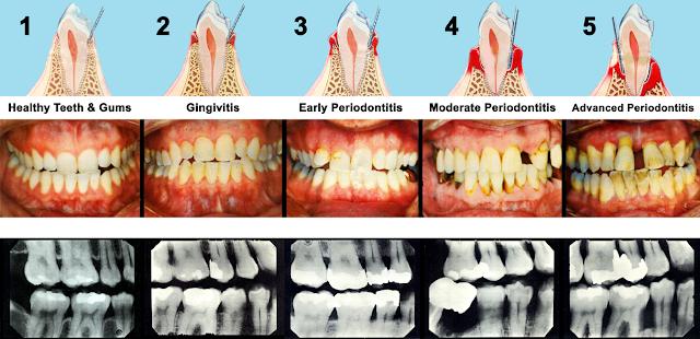 Różne stadia zaawansowania paradontozy na rysunku pojedynczego zęba, zdjęciu wszystkich zębów oraz telerentgenograficznym  (RTG).
