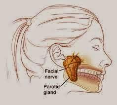 Penyebab dan Gejala Penyakit Tumor Rahang