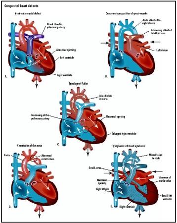 TEXTBOOK : CONGENITAL HEART DISEASE – SELECTED ASPECTS ...