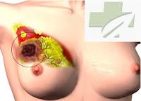 Cara mencegah timbulnya sel kanker payudara