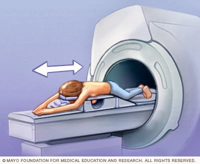 mri breast scanner exclude