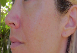 Tips on how to get rid of acne scars