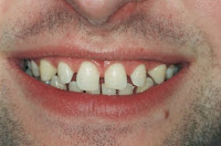 milton keynes dentist cosmetic bonding
