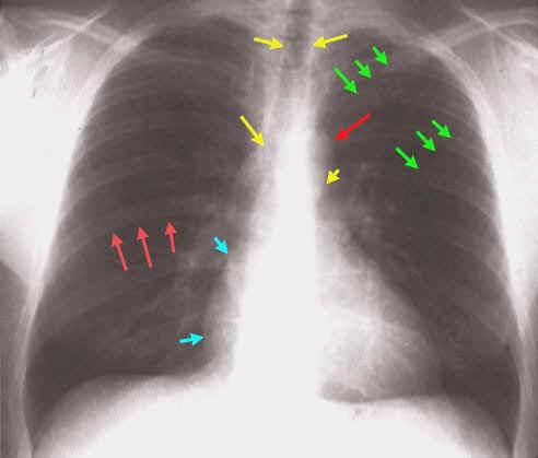 Anatomía Humana... Para Humanos: CRITERIOS RADIOLOGICOS EN ...