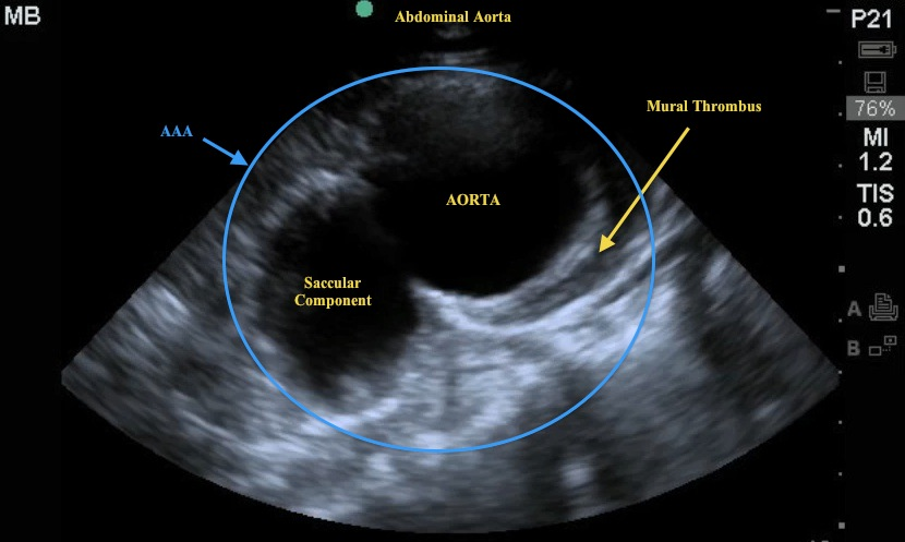 Emory emergency ultrasound abdominal pain gallstones or for Aortic aneurysm with mural thrombus
